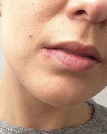 How to properly and completely conceal a cold sore with makeup photo 1 remove ccuart Choice Image